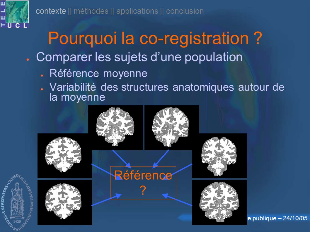 Défense publique – 24/10/05 Pourquoi la co-registration ? Comparer les sujets dune population Référence moyenne Variabilité des structures anatomiques