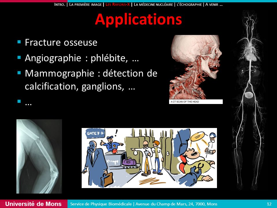 Université de Mons Fracture osseuse Angiographie : phlébite, … Mammographie : détection de calcification, ganglions, … … Applications 12 Service de Ph