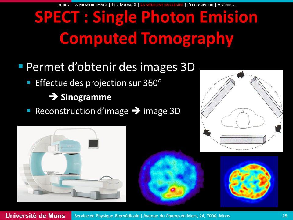 Université de Mons Permet dobtenir des images 3D Effectue des projection sur 360° Sinogramme Reconstruction dimage image 3D SPECT : Single Photon Emis
