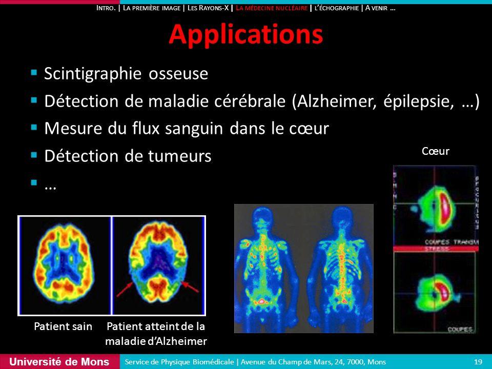 Université de Mons Scintigraphie osseuse Détection de maladie cérébrale (Alzheimer, épilepsie, …) Mesure du flux sanguin dans le cœur Détection de tum