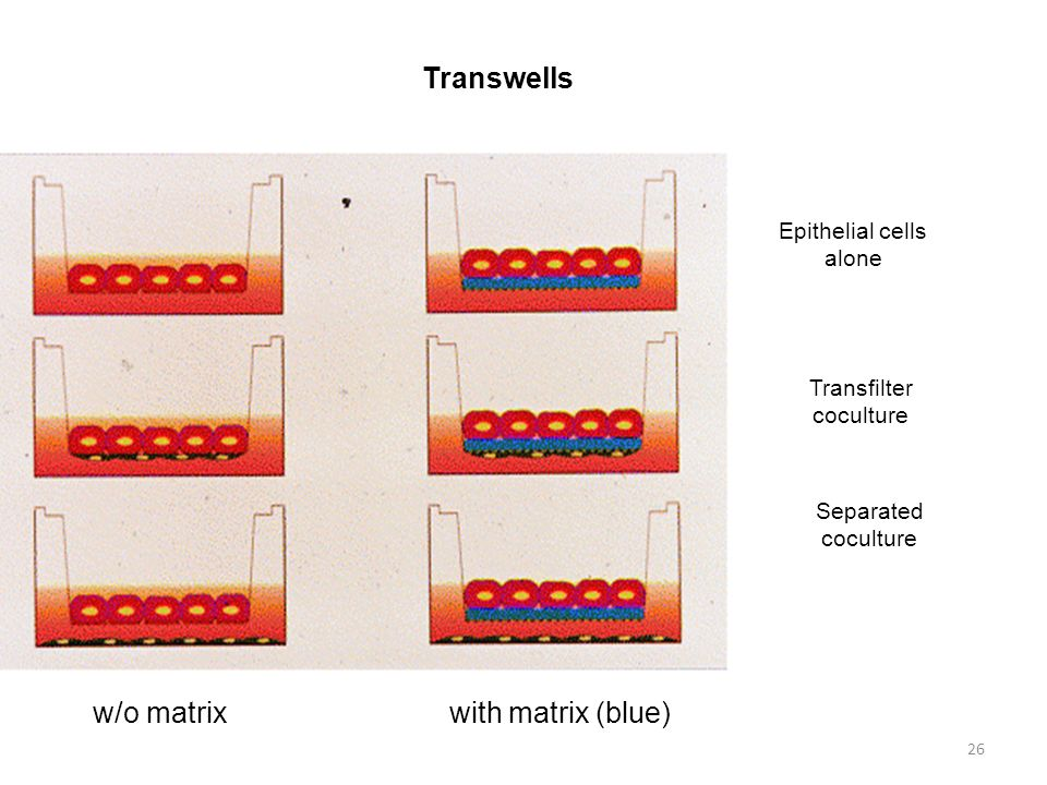 26 Transwells w/o matrix with matrix (blue) Epithelial cells alone Transfilter coculture Separated coculture