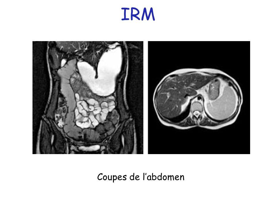 IRM Coupes de labdomen