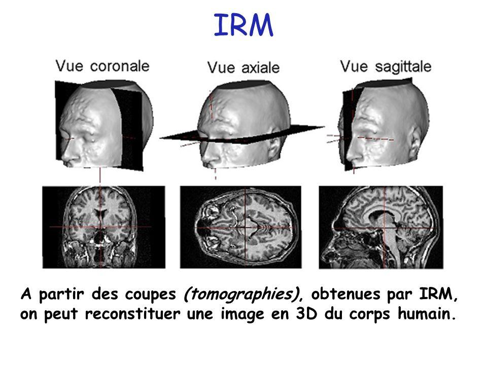 IRM A partir des coupes (tomographies), obtenues par IRM, on peut reconstituer une image en 3D du corps humain.