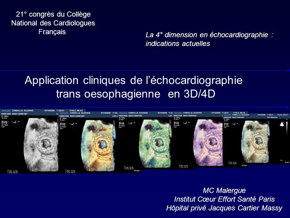 Conclusions Pas de limite déchogénéicité comme le 3D échocardiographie trans thoracique Intérêt indiscutable dans toutes les procédures interventionnelles (CIA, prothèses percutanées, plastie mitrale Anatomie mitrale+++ Nouvelles approches : relation annulaire aorte / mitrale