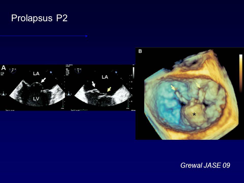 Prolapsus P2 Grewal JASE 09