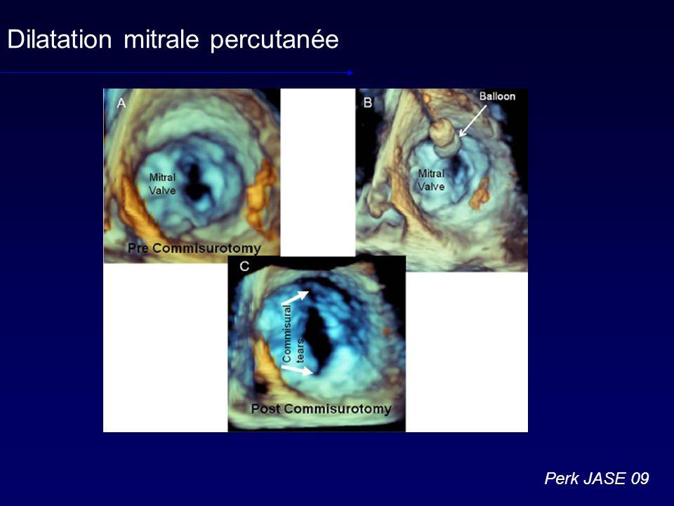 Dilatation mitrale percutanée Perk JASE 09
