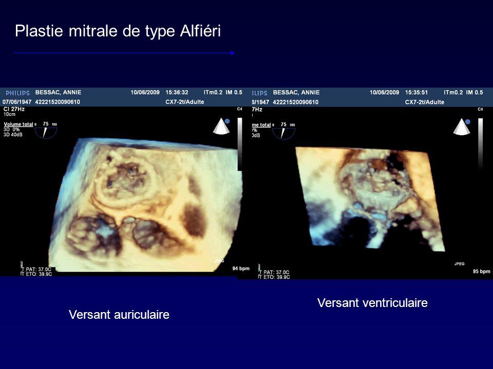 Plastie mitrale de type Alfiéri Versant auriculaire Versant ventriculaire