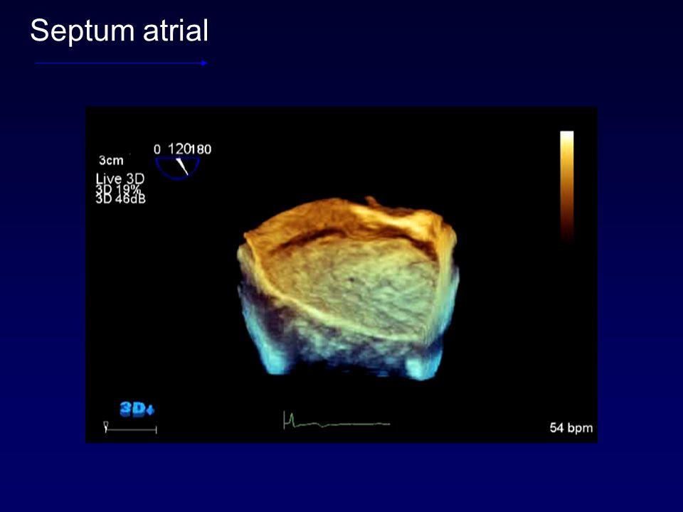 Septum atrial