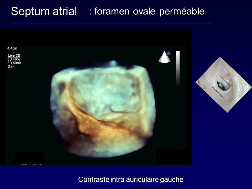 : foramen ovale perméable Septum atrial Contraste intra auriculaire gauche