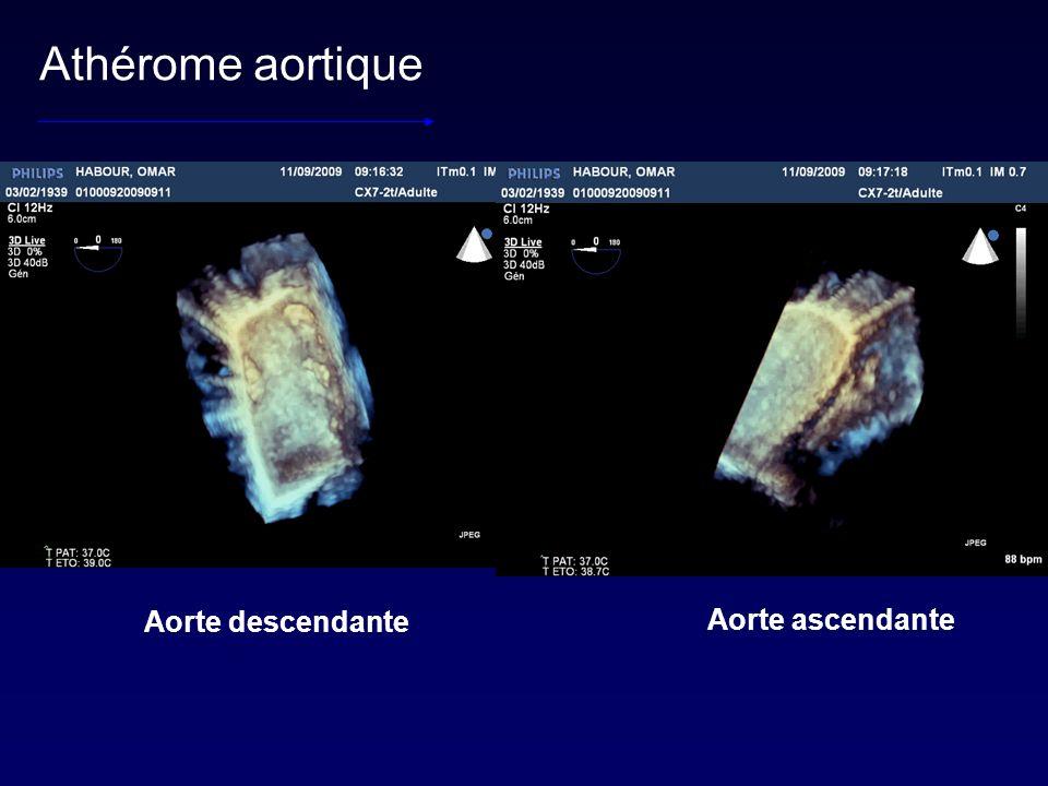 Athérome aortique Aorte descendante Aorte ascendante