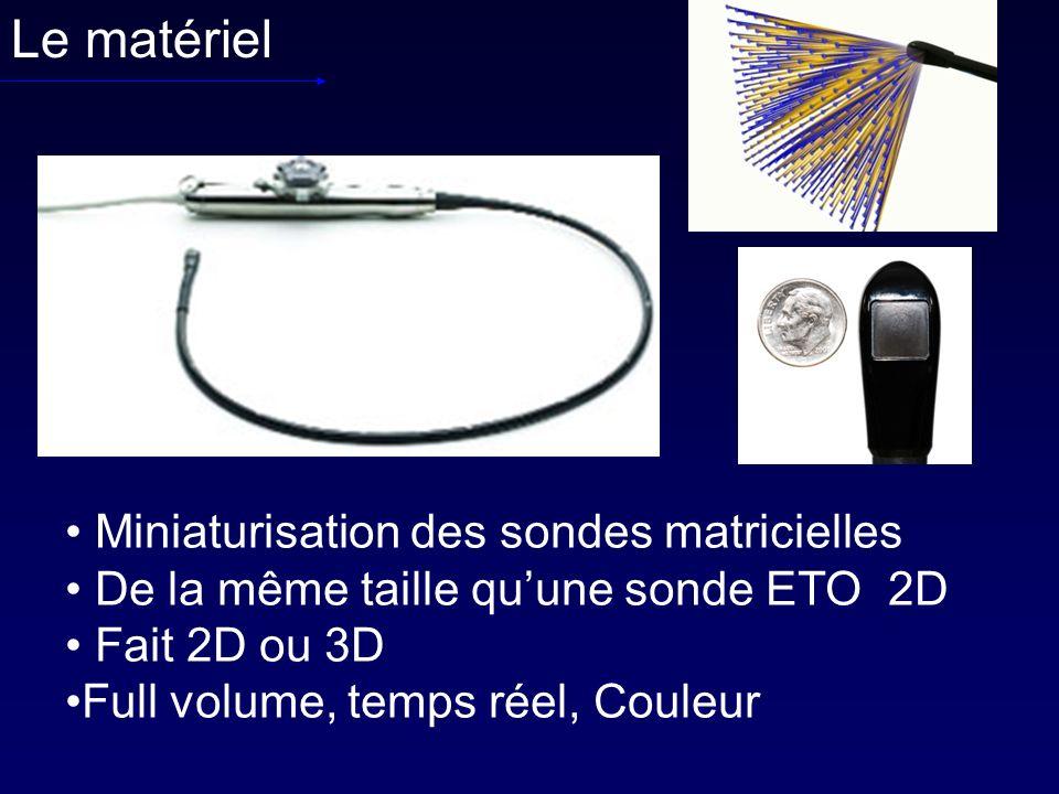 Le matériel Miniaturisation des sondes matricielles De la même taille quune sonde ETO 2D Fait 2D ou 3D Full volume, temps réel, Couleur