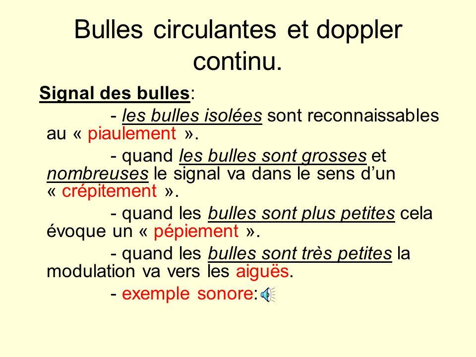 Bulles circulantes et doppler continu. Signal des bulles: - les bulles isolées sont reconnaissables au « piaulement ». - quand les bulles sont grosses