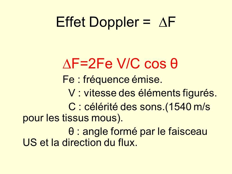 Effet Doppler = F F=2Fe V/C cos θ Fe : fréquence émise. V : vitesse des éléments figurés. C : célérité des sons.(1540 m/s pour les tissus mous). θ : a