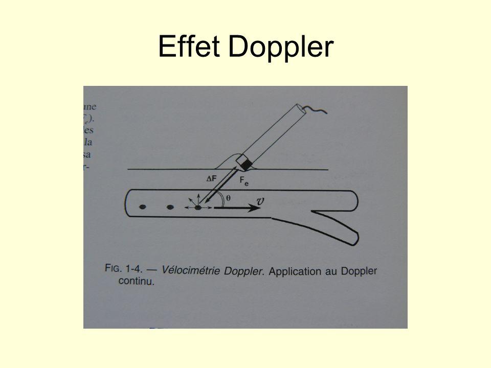 Effet Doppler