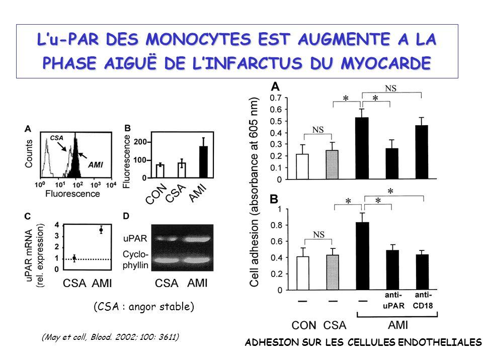 Lu-PAR DES MONOCYTES EST AUGMENTE A LA PHASE AIGUË DE LINFARCTUS DU MYOCARDE (CSA : angor stable) ADHESION SUR LES CELLULES ENDOTHELIALES (May et coll