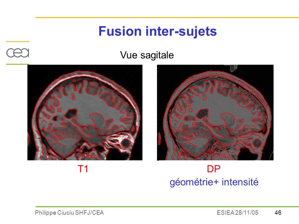 46Philippe Ciuciu SHFJ/CEAESIEA 28/11/05 DPT1 géométrie+ intensité Vue sagitale Fusion inter-sujets