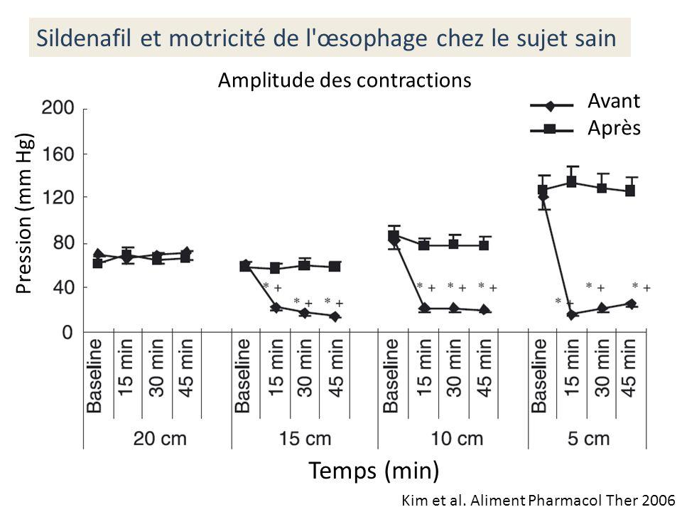 Kim et al. Aliment Pharmacol Ther 2006 Sildenafil et motricité de l'œsophage chez le sujet sain Pression (mm Hg) Amplitude des contractions Avant Aprè