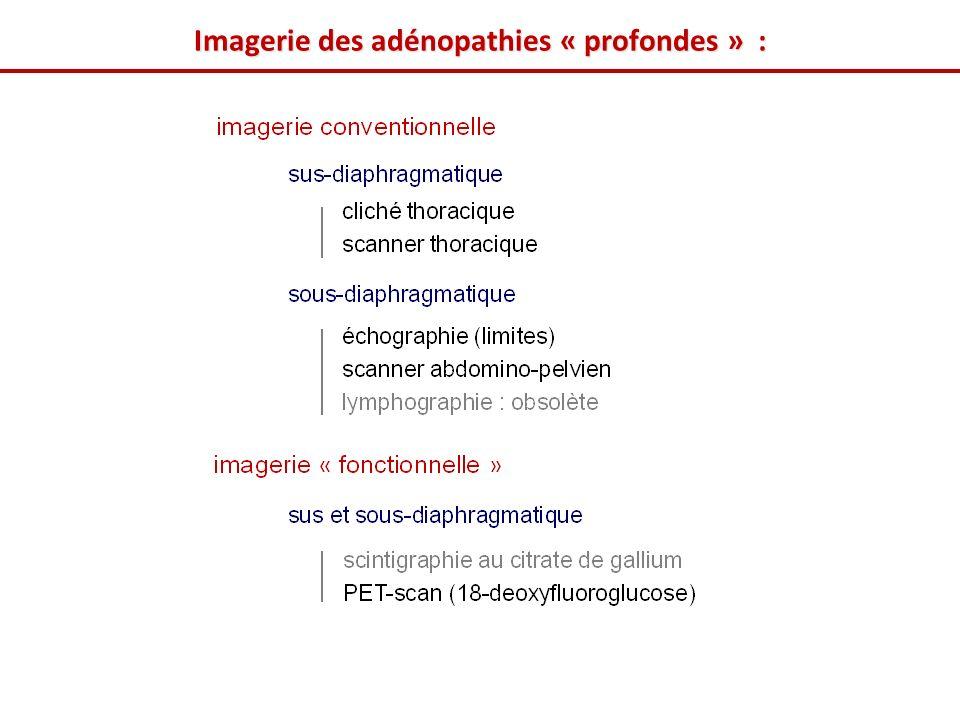 Imagerie des adénopathies « profondes » :