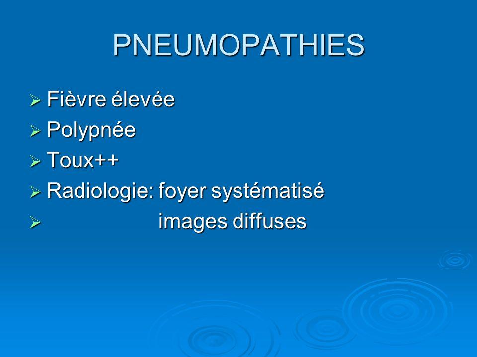 PNEUMOPATHIES Fièvre élevée Fièvre élevée Polypnée Polypnée Toux++ Toux++ Radiologie: foyer systématisé Radiologie: foyer systématisé images diffuses