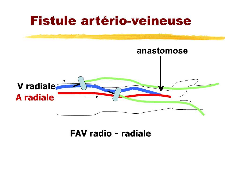 Fistule artério-veineuse anastomose V radiale A radiale FAV radio - radiale