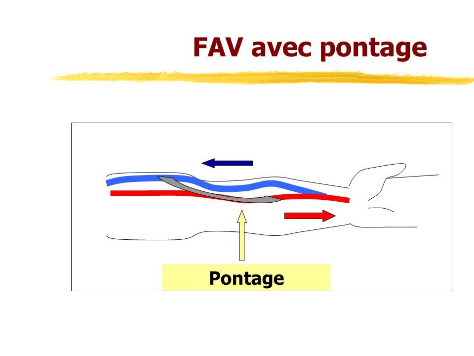 Pontage FAV avec pontage