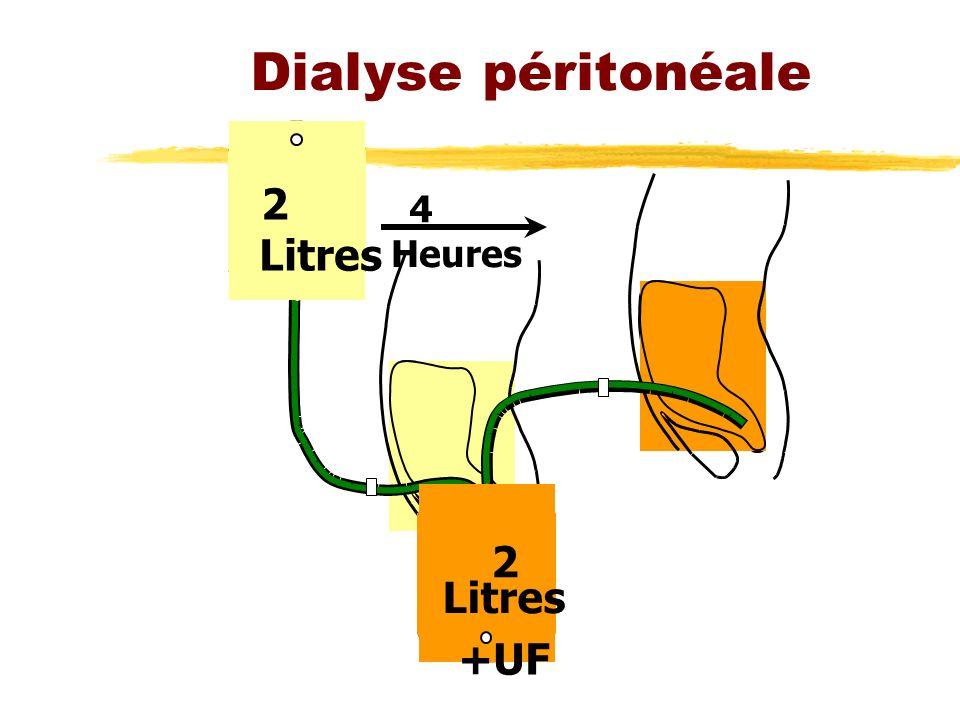 Dialyse péritonéale 2 Litres 4 Heures 2 Litres +UF