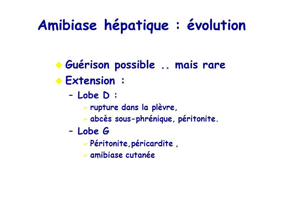 Amibiase hépatique : évolution Guérison possible.. mais rare Extension : –Lobe D : rupture dans la plèvre, abcès sous-phrénique, péritonite. –Lobe G P