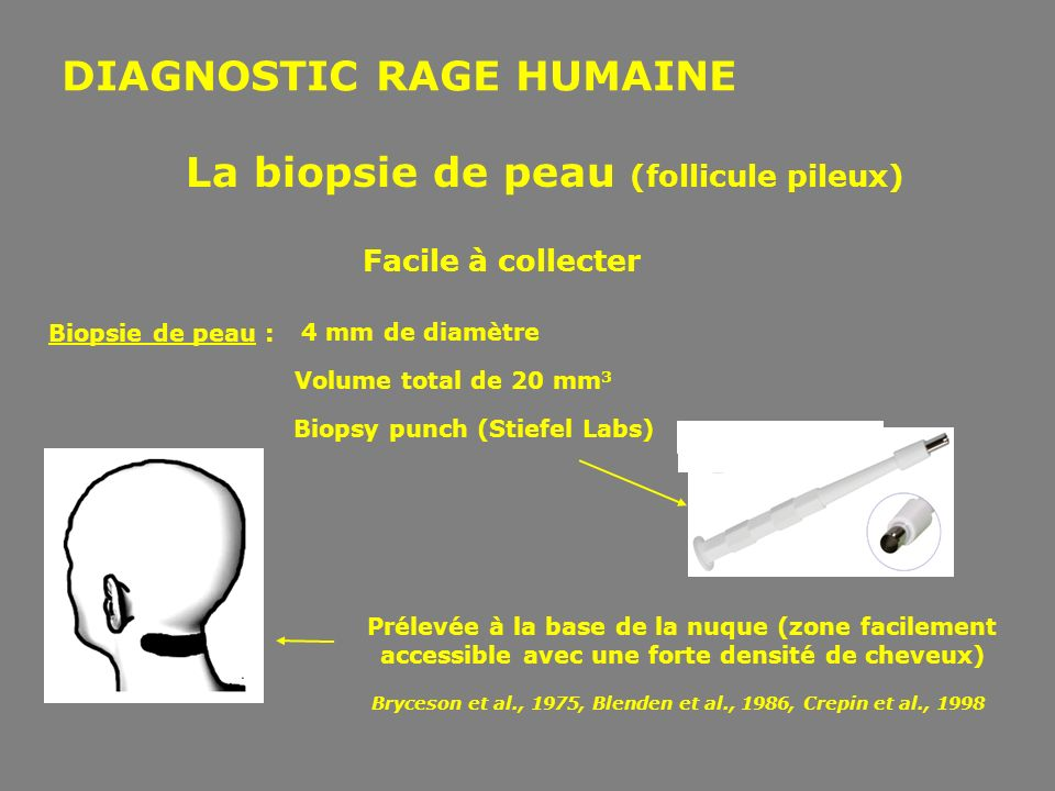 DIAGNOSTIC RAGE HUMAINE Facile à collecter 4 mm de diamètre Volume total de 20 mm 3 Biopsie de peau : Biopsy punch (Stiefel Labs) Prélevée à la base d