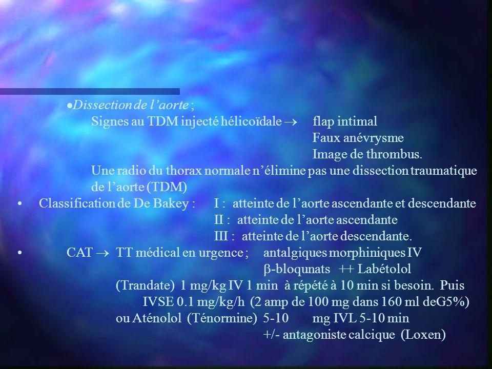 Dissection de laorte ; Signes au TDM injecté hélicoïdale flap intimal Faux anévrysme Image de thrombus. Une radio du thorax normale nélimine pas une d