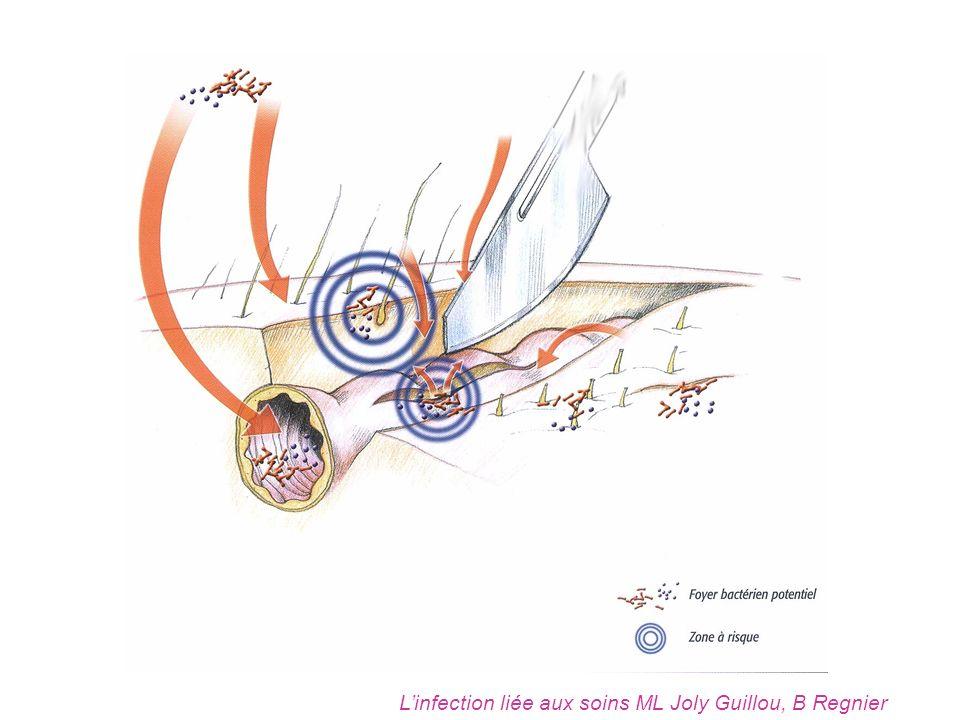 Linfection liée aux soins ML Joly Guillou, B Regnier
