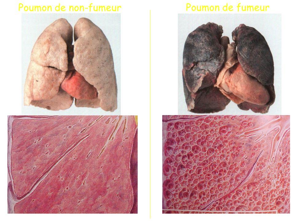 Poumon de non-fumeur Poumon de fumeur