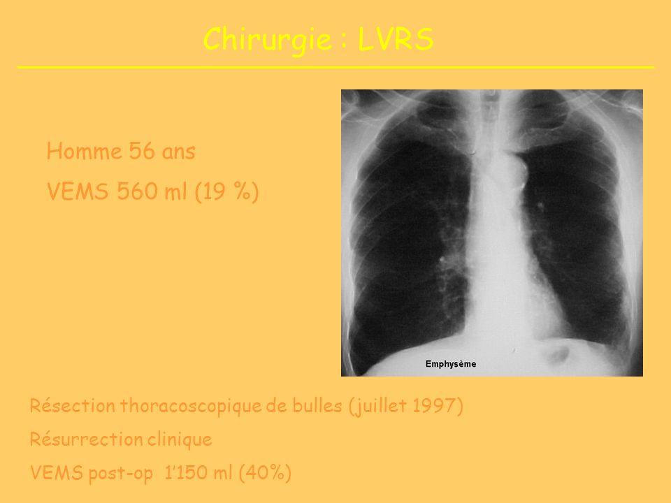 Chirurgie : LVRS Résection thoracoscopique de bulles (juillet 1997) Résurrection clinique VEMS post-op 1150 ml (40%) Homme 56 ans VEMS 560 ml (19 %)