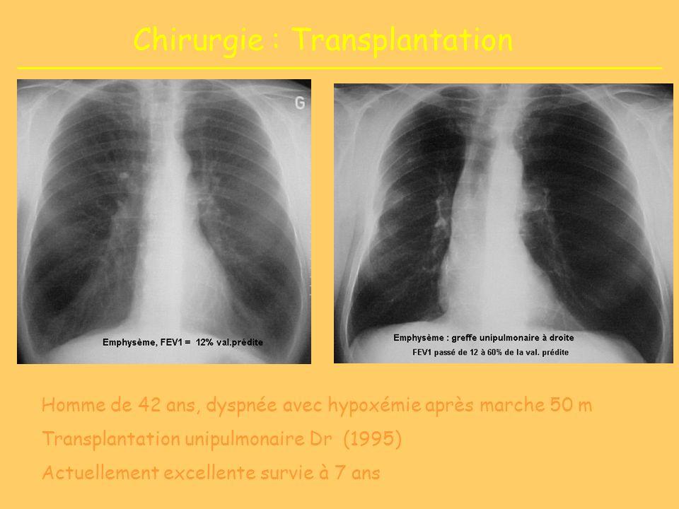 Chirurgie : Transplantation Homme de 42 ans, dyspnée avec hypoxémie après marche 50 m Transplantation unipulmonaire Dr (1995) Actuellement excellente survie à 7 ans