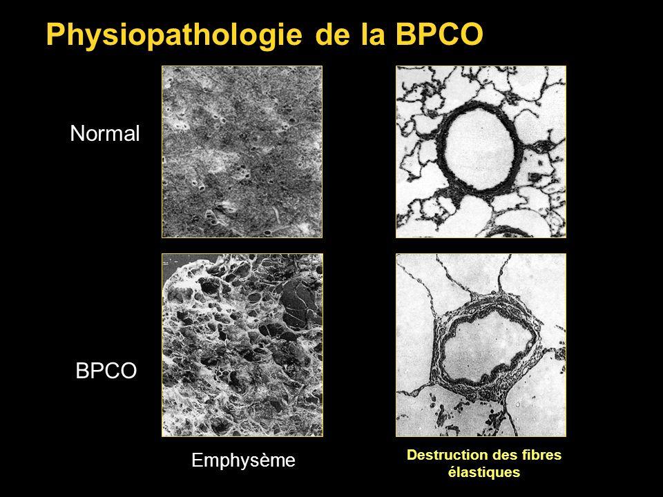 Normal Physiopathologie de la BPCO BPCO Emphysème Destruction des fibres élastiques