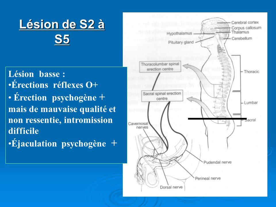 Lésion de S2 à S5 Lésion basse : Érections réflexes O+ Érection psychogène + mais de mauvaise qualité et non ressentie, intromission difficile Éjacula