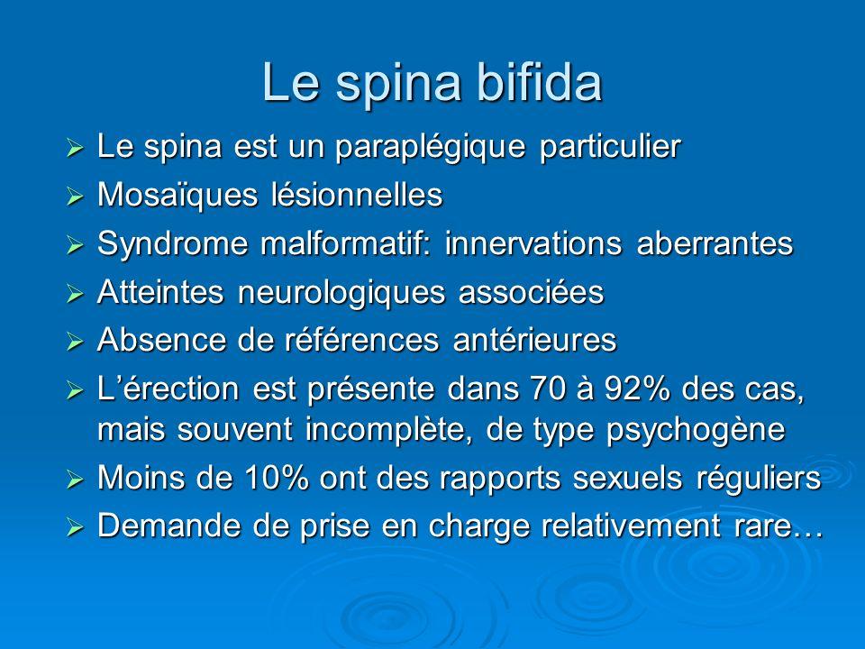 Le spina bifida Le spina est un paraplégique particulier Le spina est un paraplégique particulier Mosaïques lésionnelles Mosaïques lésionnelles Syndro