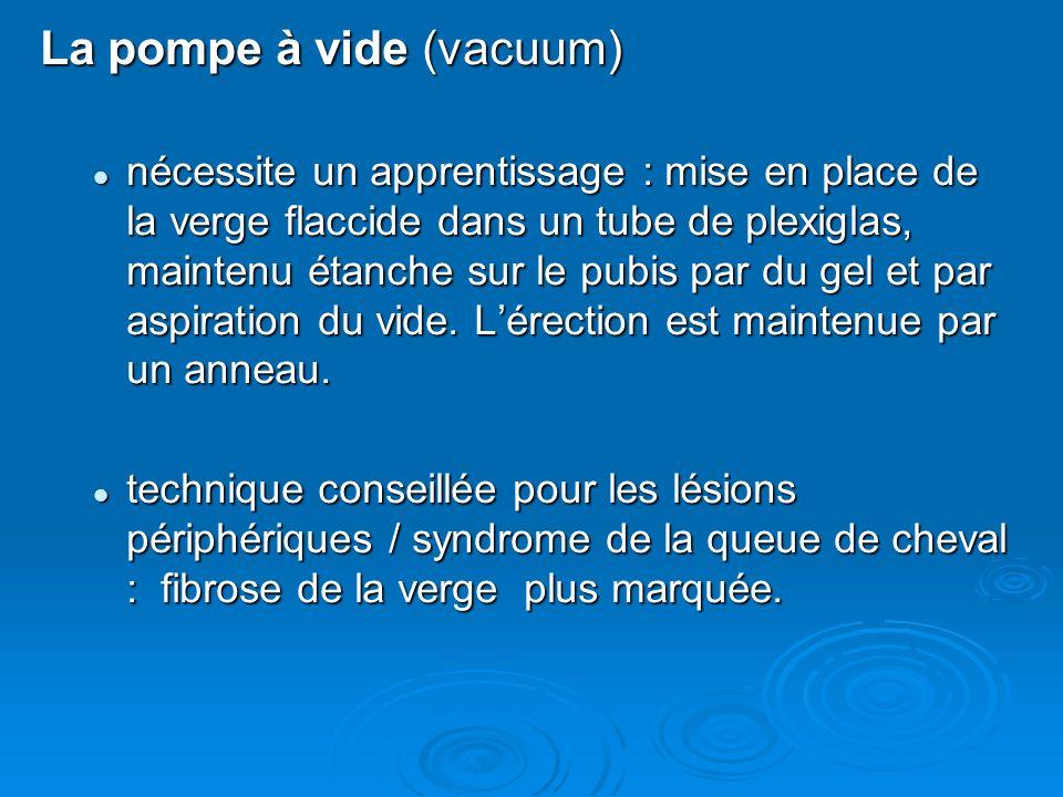 La pompe à vide (vacuum) nécessite un apprentissage : mise en place de la verge flaccide dans un tube de plexiglas, maintenu étanche sur le pubis par