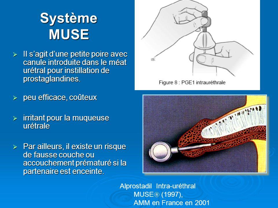 Système MUSE Il sagit dune petite poire avec canule introduite dans le méat urétral pour instillation de prostaglandines. Il sagit dune petite poire a