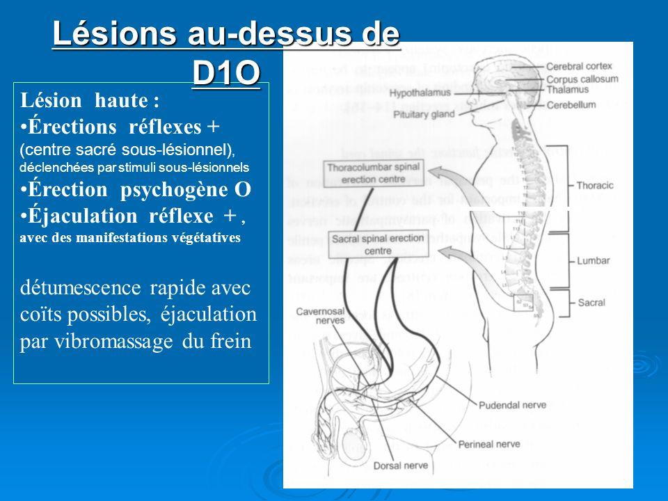 Lésion haute : Érections réflexes + (centre sacré sous-lésionnel), déclenchées par stimuli sous-lésionnels Érection psychogène O Éjaculation réflexe +