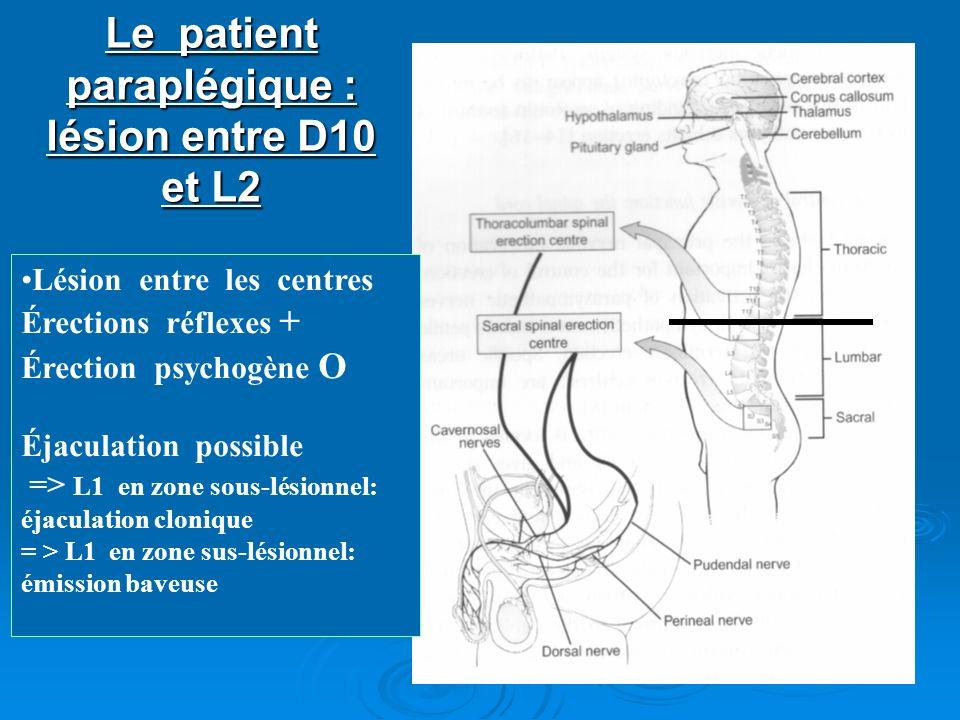 Le patient paraplégique : lésion entre D10 et L2 Lésion entre les centres Érections réflexes + Érection psychogène O Éjaculation possible => L1 en zon