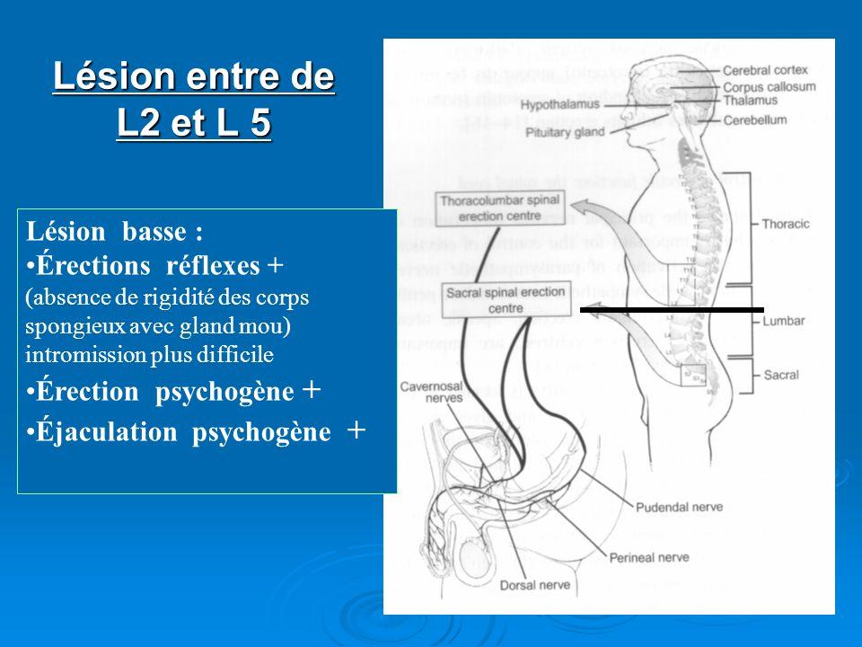 Lésion entre de L2 et L 5 Lésion basse : Érections réflexes + (absence de rigidité des corps spongieux avec gland mou) intromission plus difficile Ére