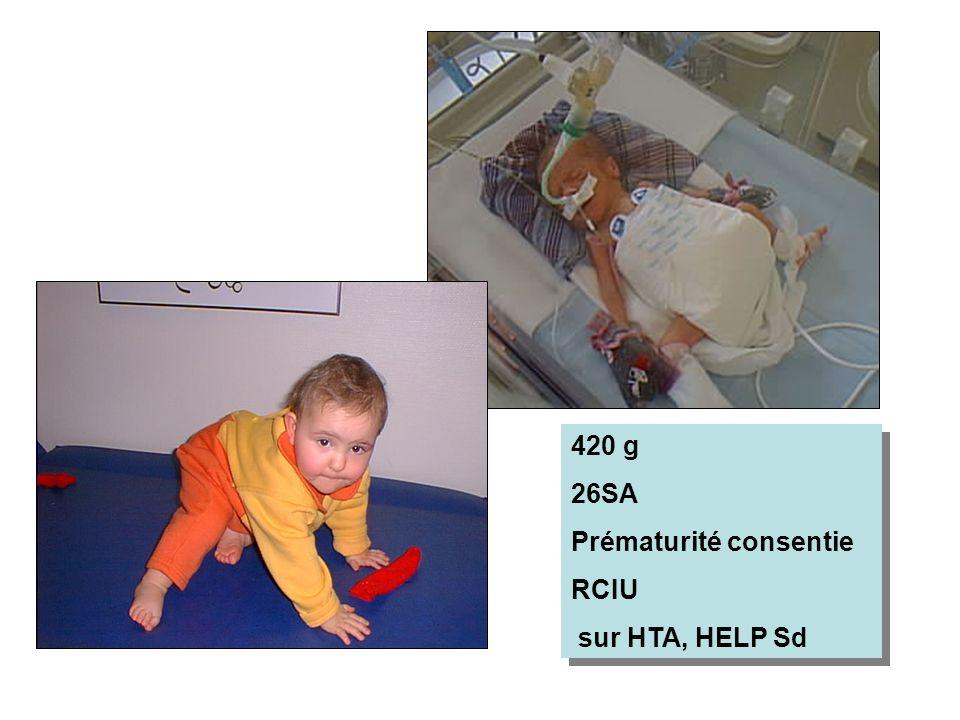 420 g 26SA Prématurité consentie RCIU sur HTA, HELP Sd 420 g 26SA Prématurité consentie RCIU sur HTA, HELP Sd