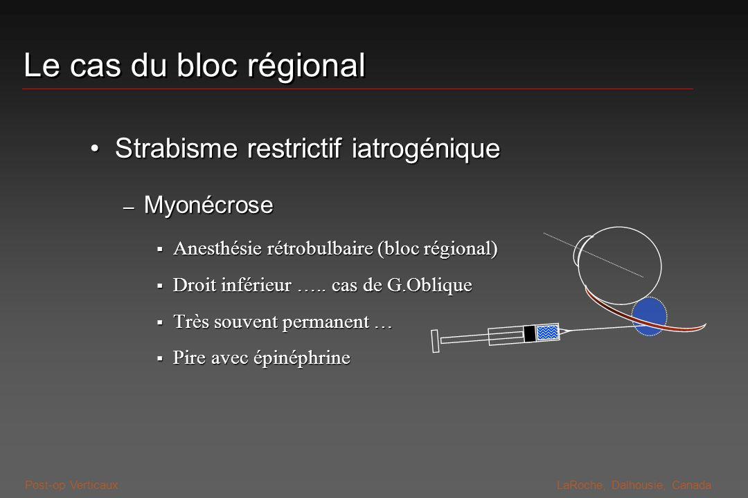 Post-op VerticauxLaRoche, Dalhousie, Canada Le cas du bloc régional Strabisme restrictif iatrogéniqueStrabisme restrictif iatrogénique – Myonécrose An