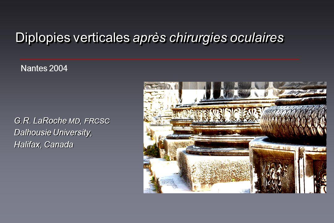 Diplopies verticales après chirurgies oculaires G.R. LaRoche MD, FRCSC Dalhousie University, Halifax, Canada Nantes 2004