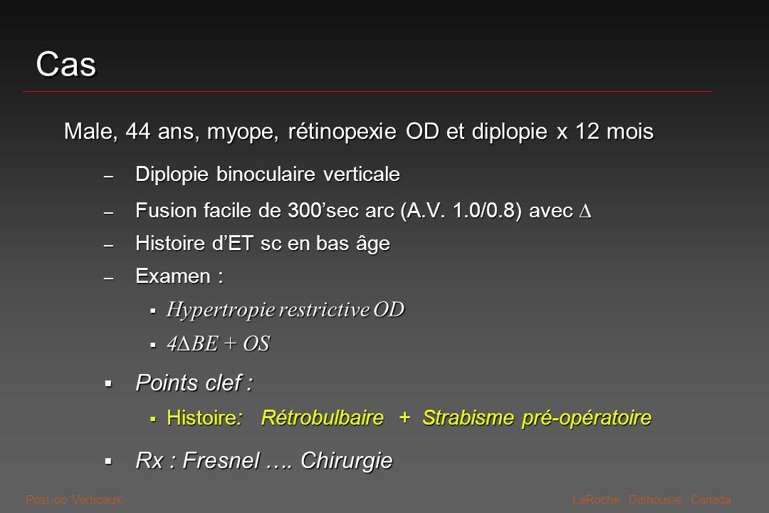 Post-op VerticauxLaRoche, Dalhousie, Canada Etiologies simples Méchaniques restrictifs Méchaniques restrictifs - Myotoxicité des agents anesthésiques locaux - Rétinopexies/glaucome : Traumatisme de la tenon, muscles, Traumatisme de la tenon, muscles, Effet masse : explants, bulles de filtrage* Effet masse : explants, bulles de filtrage* Wright K.W, Hwang J-M,; Diplopia and Strabismus After Retinal and Glaucoma Surgery; Am Orthopt J (1994) 44:26-30 Wright K.W, Hwang J-M,; Diplopia and Strabismus After Retinal and Glaucoma Surgery; Am Orthopt J (1994) 44:26-30 Strabiques Strabiques - Pré-opératoire décompensée : IV, X(T)+/- verticalité