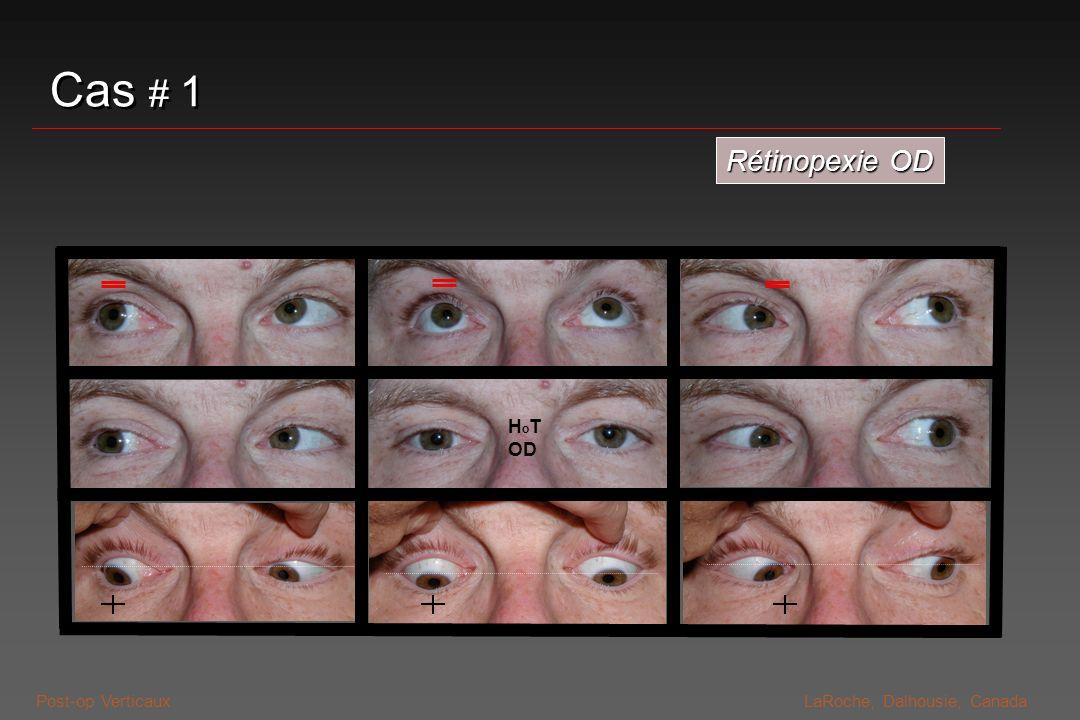 Post-op VerticauxLaRoche, Dalhousie, Canada Mesures préventives Anesthésie épibulbaire / topique Anesthésie épibulbaire / topique Eviter déséquilibres optiquesEviter déséquilibres optiques eg: axe optique vs zone dablation eg: axe optique vs zone dablation eg: aniséikonie de correction myopie/hypermétropie monoculaire eg: aniséikonie de correction myopie/hypermétropie monoculaire Eviter bascule de fixationEviter bascule de fixation