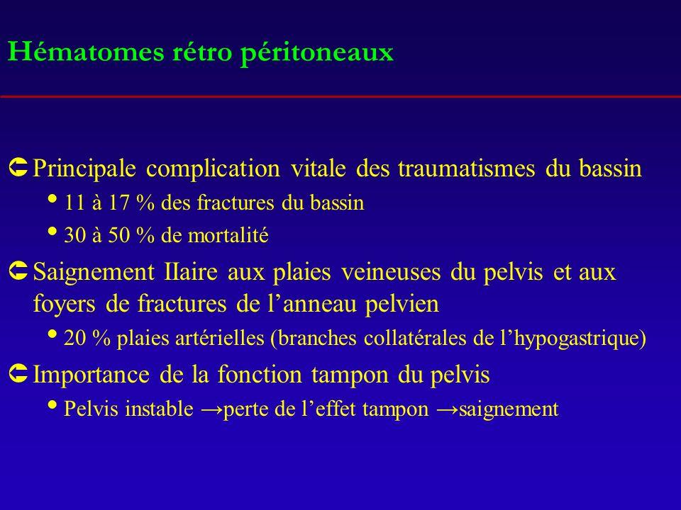 Hématomes rétro péritoneaux ÛPrincipale complication vitale des traumatismes du bassin 11 à 17 % des fractures du bassin 30 à 50 % de mortalité ÛSaign