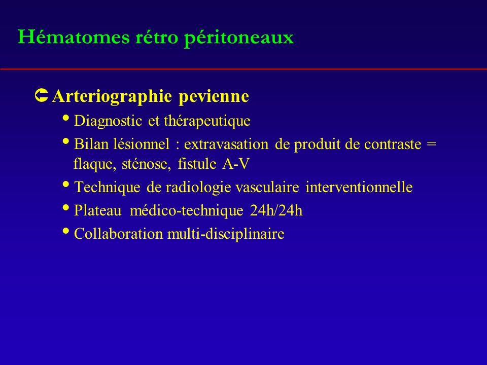 Hématomes rétro péritoneaux ÛArteriographie pevienne Diagnostic et thérapeutique Bilan lésionnel : extravasation de produit de contraste = flaque, sté