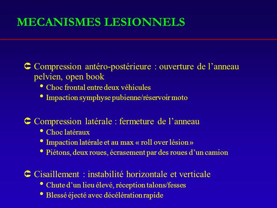MECANISMES LESIONNELS ÛCompression antéro-postérieure : ouverture de lanneau pelvien, open book Choc frontal entre deux véhicules Impaction symphyse p