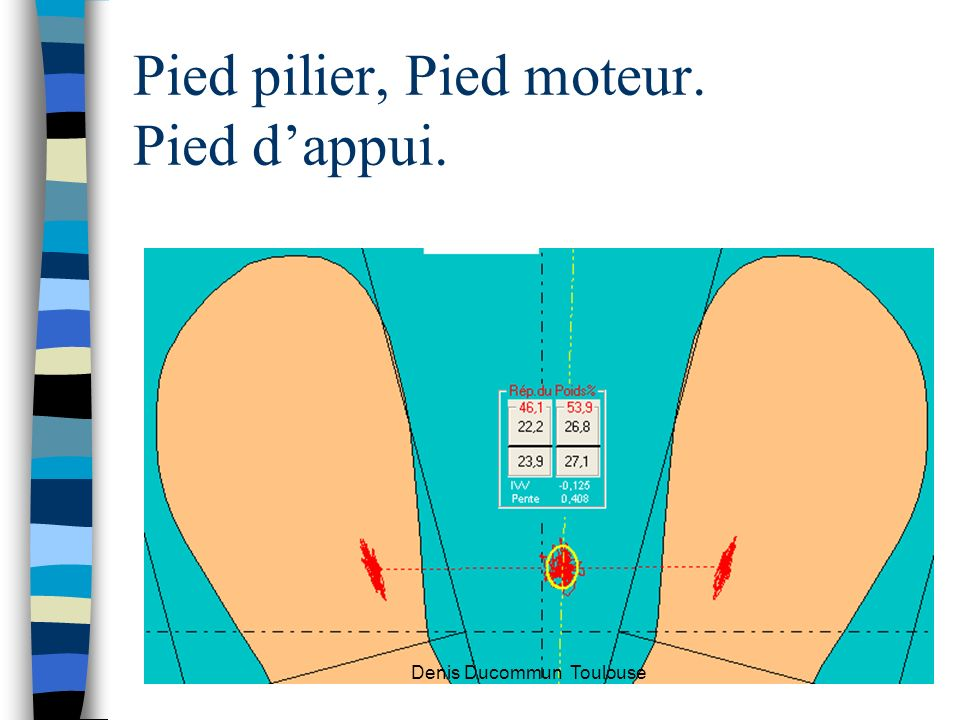 Pied pilier, Pied moteur. Pied dappui. Denis Ducommun Toulouse